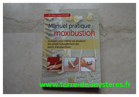 Moxibustion : un livre pratique pour soulager soi-même ses douleurs en chauffant les points d'acupuncture